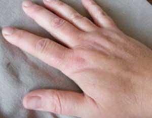 ورم کردن انگشتان دست ها نشانه چیست؟