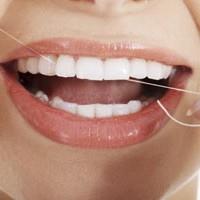 پیشگیری از پوسیدگی دندان با نخ دندان