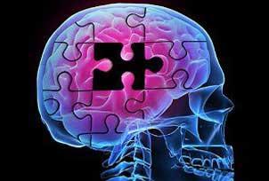 علائم شروع آلزایمر