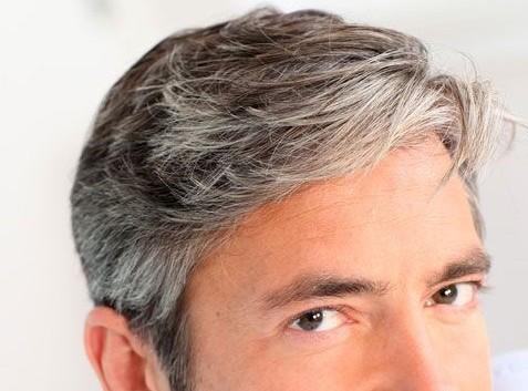 زود سفید شدن مو ، چرا ؟